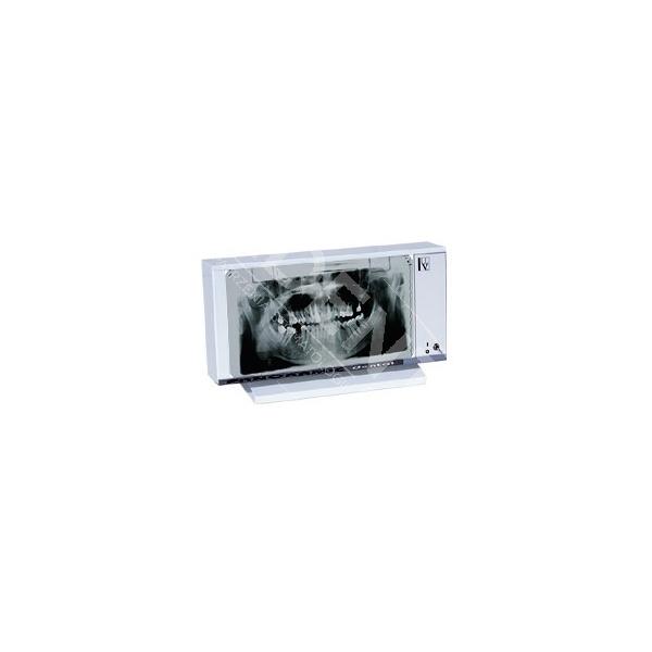 Negatoskop dentystyczny PANORAM 01